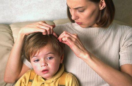 Как лечить вши - лечение вшей у детей и беременных