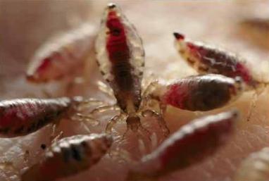 человеческие паразиты лечение